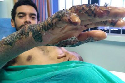Video: Can Tilapia Fish Skin Be Used To Bandage Third Degree Burns?