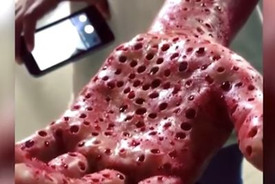 Video: Worms That Belong In Nightmares Could Be Feeding On Your Flesh!