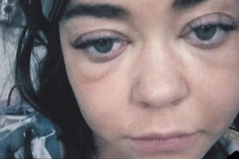 Video: Sarah Hyland Rushed To Hospital After Health Crisis 1