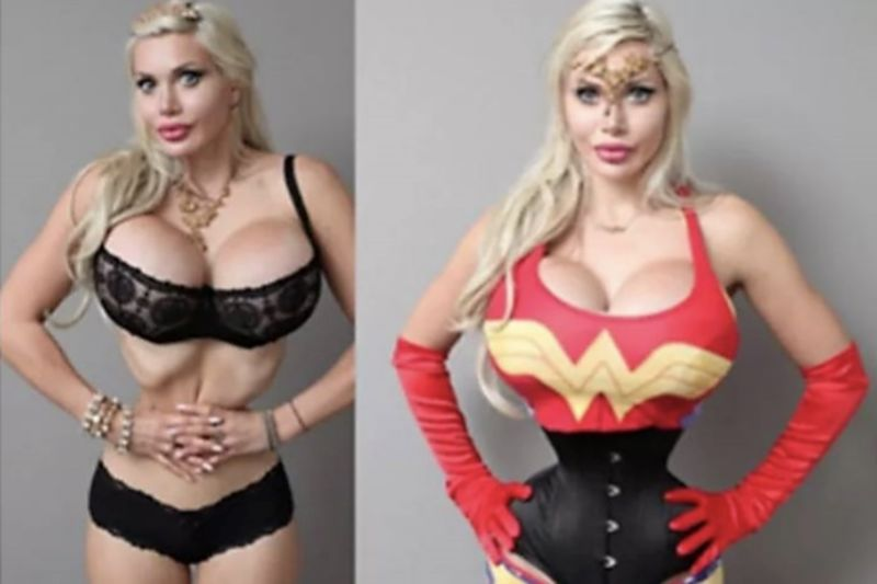 Woman Gets 200 Procedures To Look Like Wonder Woman 1